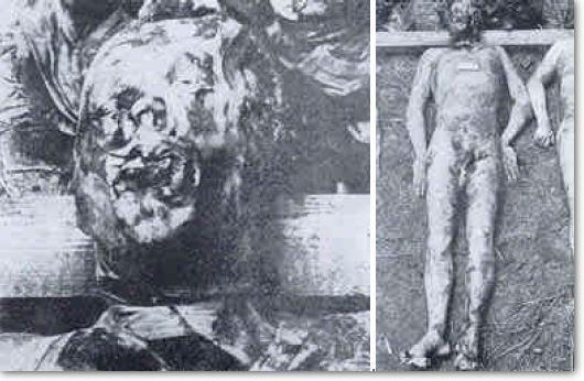 Corpse of Gedimins Frankovic